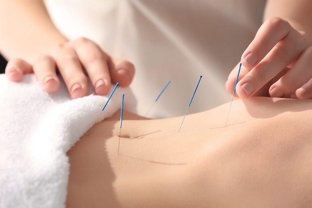 Medical_Acupuncture.jpg